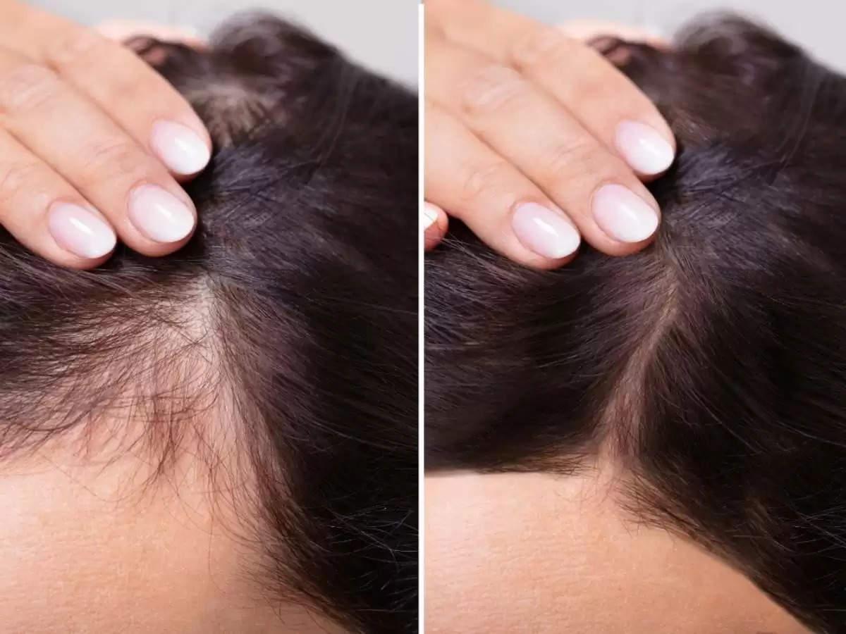 आपके बालों में कैमिकल से हो गया है साइड इफेक्ट, तो यह चीज करेगी आपकी परेशानी दूर