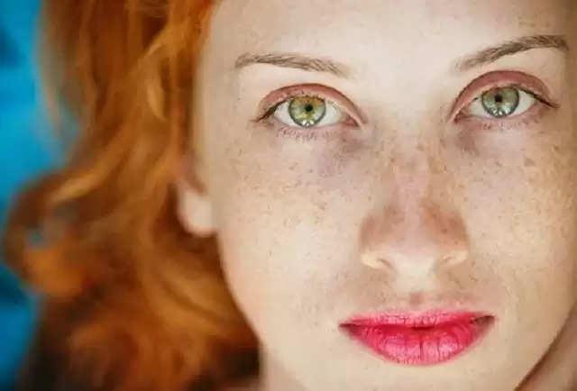 आपके चेहरे पर भी कम उम्र में हो गई है झाइयां, तो आपके किचन में मौजूद ये चीजें है रामबाण इलाज