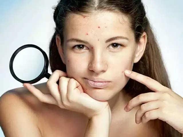 Pimples ठीक होने के बाद चेहरे पर रह गए हैं भद्दे निशान तो क्या करें?
