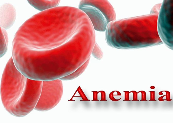 क्या होता है एनीमिया, क्या है इसका घरेलू उपचार