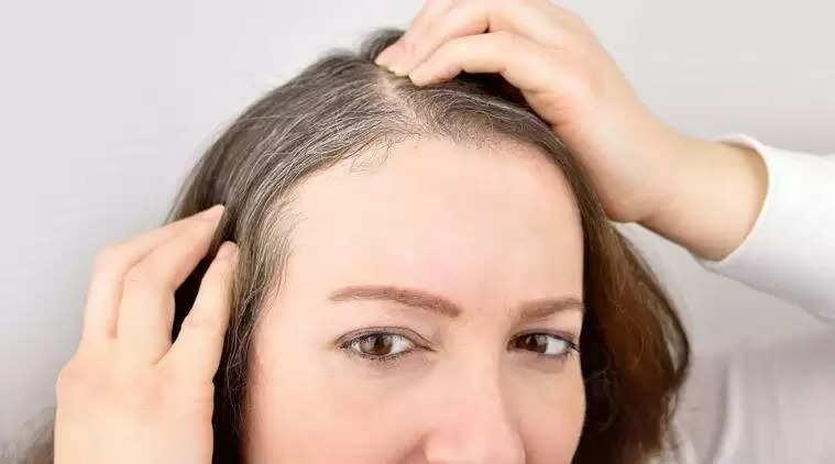 आप अगर सफ़ेद बालों की समस्या से परेशान है तो अपनाइये ये घरेलु नुस्खे