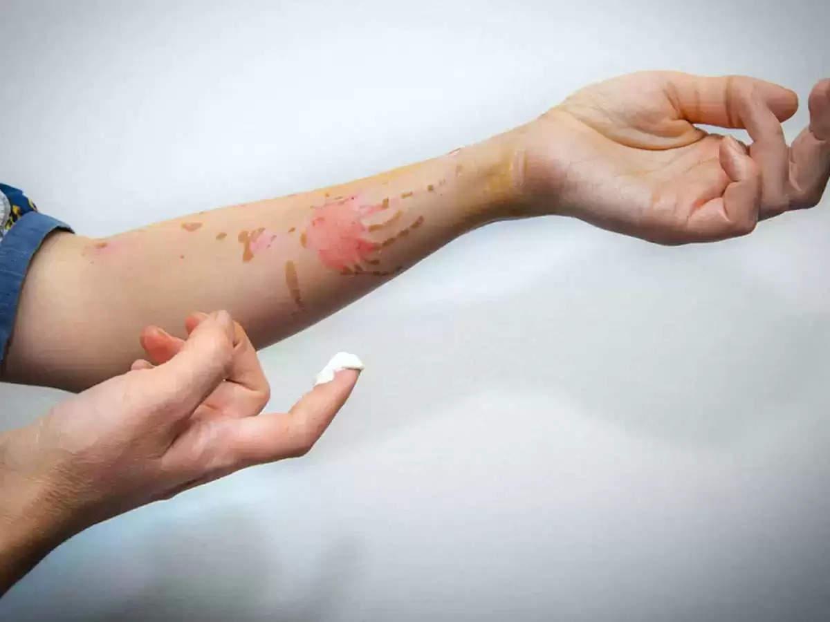 आपके शरीर पर रह गये है जले के निशान, तो आज ही करें ये घरेलू उपाय