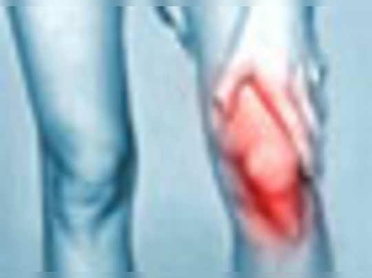 ऑस्टियोपोरोसिस:जानिए ,इसके कारण, लक्षण, और उपचार