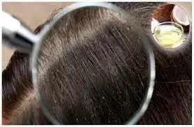 अगर आपके बालों पर भी होता चीजों से साइड इफेक्ट, तो इस चीज का करें इस्तेमाल कभी नहीं होगी समस्या