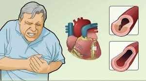 एनजाइना के लक्षण, कारण, निदान, उपचार, और बचाव